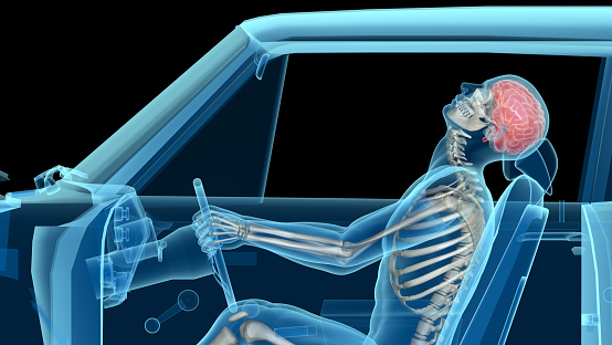 X-ray of a man in a car accident, rear collision, showing skeleton and brain. Side view. Isolated on black background.